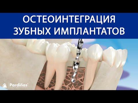 Остеоинтеграция зубных имплантатов ©