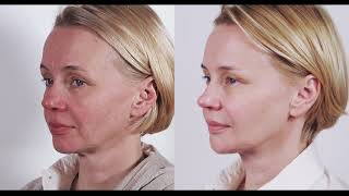 The non surgical face lifting whole face approach – stunning results