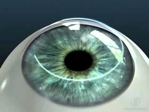 Резко пропадает зрение на одном глазу