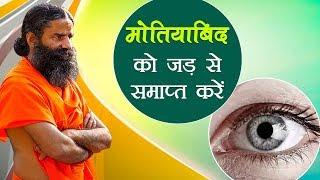 मोतियाबिंद (Cataract) को जड़ से समाप्त करें | Swami Ramdev