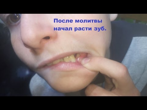 После молитвы начал расти зуб.  After the prayer began to grow the tooth.