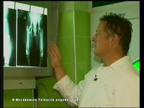 A clavicularis ízület szegycsontjának artrózisa