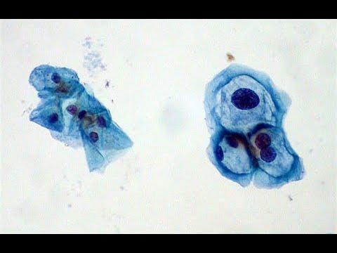 Cancer de colon nivel 4