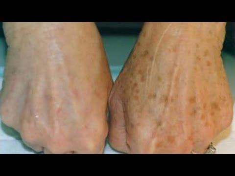 Entre dedos de eczema de mãos