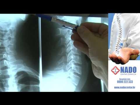 Orijentalna medicina liječenje hipertenzije