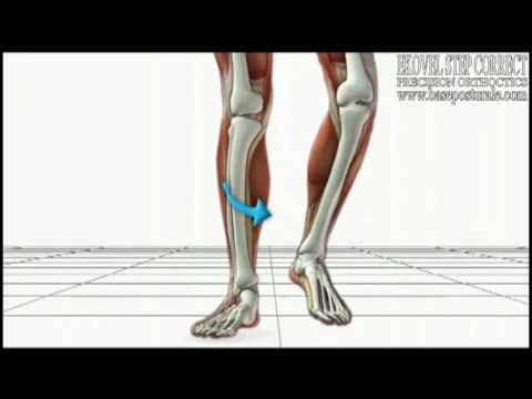 Deformazione di ekvinusny di piedi su mkb 10