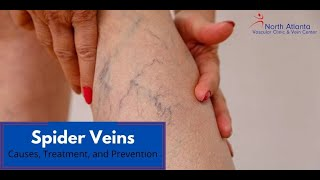Spider Veins Causes treatment prevention