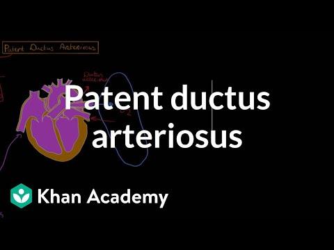 Seems Ductus arteriosus patent adult reply