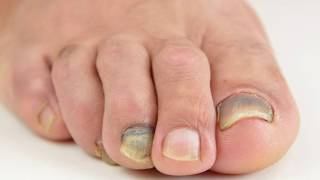 Santa Barbara Podiatrist (foot doctor) talks about Discolored Toenails and Fungal Infection