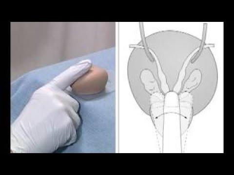 Prostatitis sexual disorders