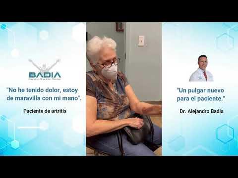 Artritis de la Articulación Basal Utilizando un Implante Protésico de Titanio de Bio Pro