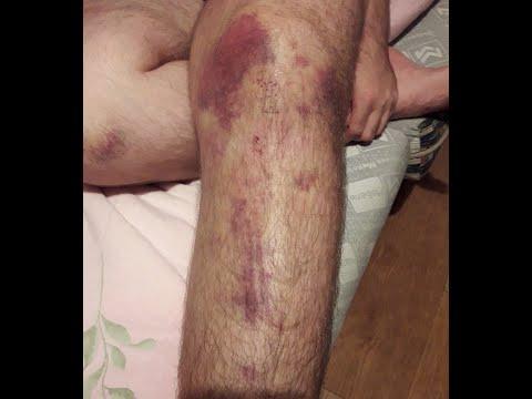 Artrita artroza gleznei
