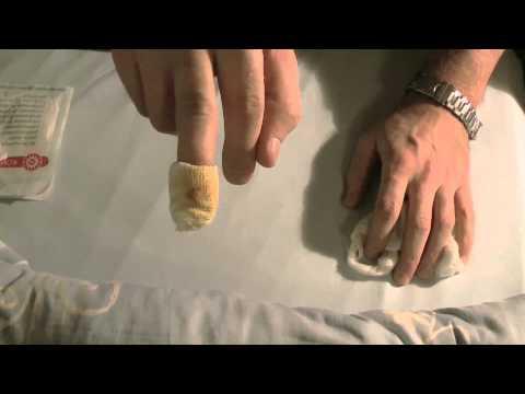 Gribok auf den Beinen und den Nägeln, wie zu behandeln