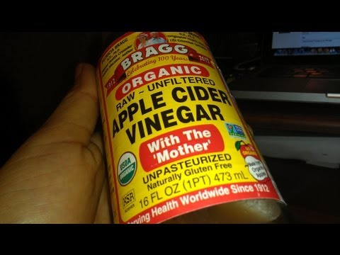 Video How To Get Rid DISSOLVE Kidney Stones Free and Naturally Treat Dissolve #ACV #health