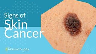 Skin Cancer Screening | Symptoms, Types & Warning Signs