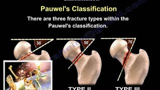 Femoral Neck Fracture Classification - Everything You Need To Know - Dr. Nabil Ebraheim