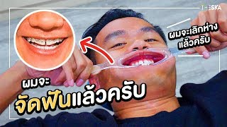 Braces Journey EP.1 Jaw Surgery: A Major Transformation!!