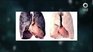 Diálogos en confianza (Salud) - Cáncer de pulmón