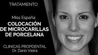 Carillas de Porcelana de la Miss España para Miss Universo - Clínica Dental Propdental Eixample
