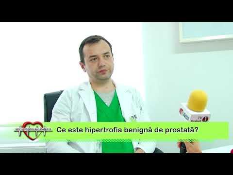 Dureri de prostata, care fac un forum