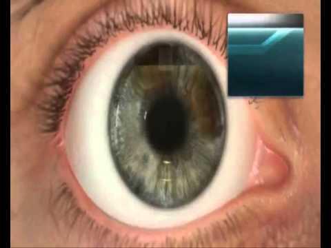 Сытин настрой на восстановление зрения слушать