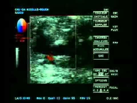 Le prix endovenoznaya lablation laser
