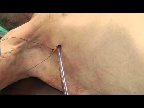 Valgus ความผิดปกติของการวินิจฉัยโรคเท้าแรก