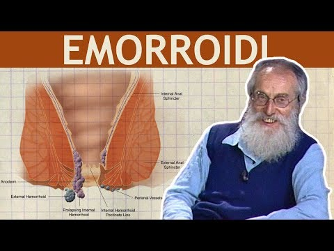 In che differenza di emorroidi maschili da delle donne