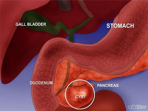 Elettrodomestici efficienti per il trattamento di prostatite