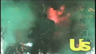 Michael Jackson's - Pepsi Commercial Accident in 1984