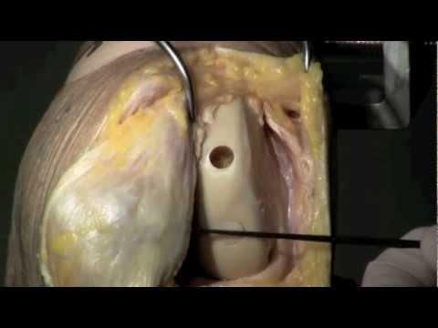 Scoliosis di reparto di petto a sinistra