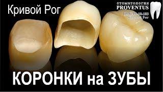 Коронка на зуб: сколько стоит поставить коронку (цена в г. Кривой Рог, Украина)