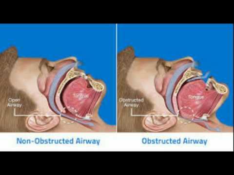 Έμφραγμα του μυοκαρδίου, πνευμονική υπέρταση