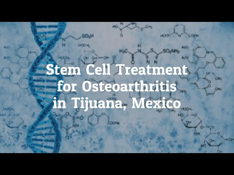 Find Top Stem Cell Treatment for Osteoarthritis in Tijuana, Mexico