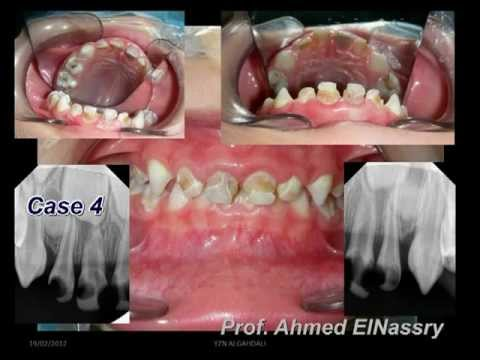 Complete Mouth Dental Treatment under General Anaesthesia, Clinical Pediatric Dentistry.