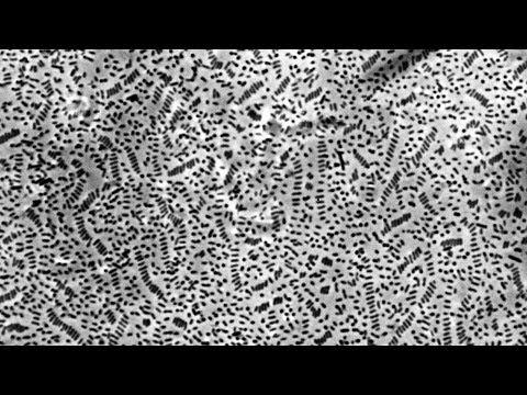 Lyme méregtelenítés kiegészítők