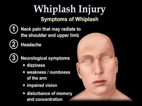 Video Whiplash Injury Animation - Everything You Need to Know  - Dr. Nabil Ebraheim, M.D.