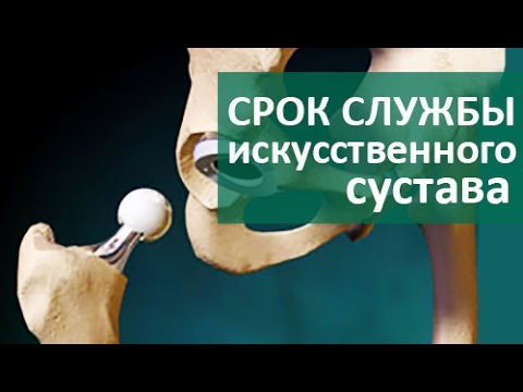 Замена тазобедренных суставов в цито
