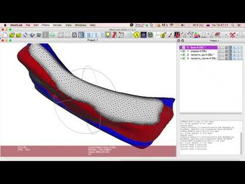 Создание высокоточной трех-мерной модели индивидуаль-ного блока. Часть 5