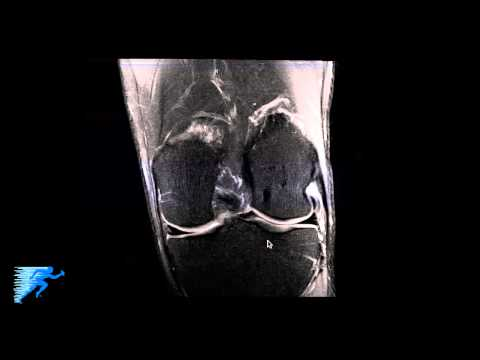 How to Read Knee MRI of Normal Knee