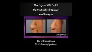 Breast Augmentation with Fat Transfers