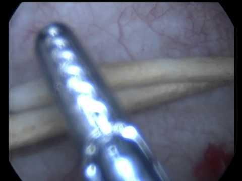 Мумие отзывы от простатита