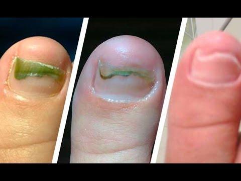 El hongo de las uñas el tratamiento el peróxido