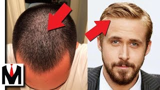 FINE Vs THIN HAIR | Same Or Different? Mens Hair Types Guide