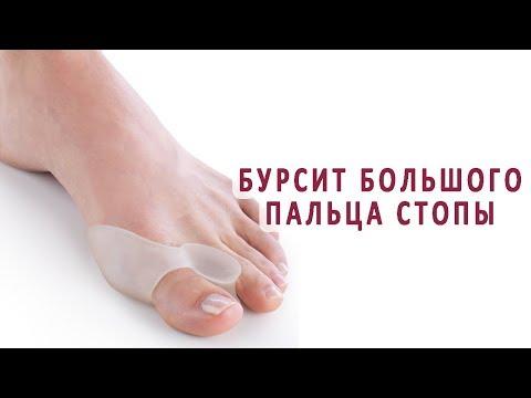 Как лечат бурсит большого пальца стопы?