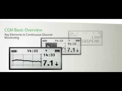 POSTIZANJE BOLJE KONTROLE  Detaljno opisan postupak upotrebe funkcija kontinuiranog praćenja glukoze i obustavljanja pri niskim razinama glukoze na vašoj inzulinskoj pumpi MiniMed™ Veo™