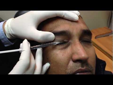 Laylay itaas na eyelids cosmetology