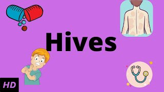 HIVES, Causes, Signs and Symptoms, Diagnosis and Treatment.