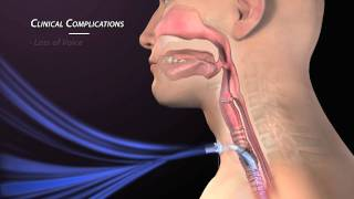 Clinical Complications of Tracheostomy