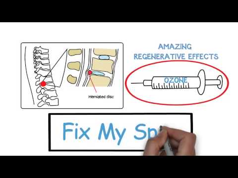 Behandlung von Schmerzen von Rücken und Schultern